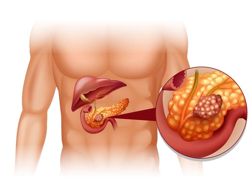 Лікування підшлункової
